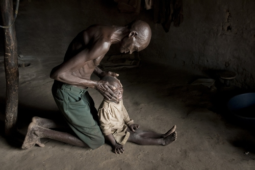 mal-acholi-ouganda